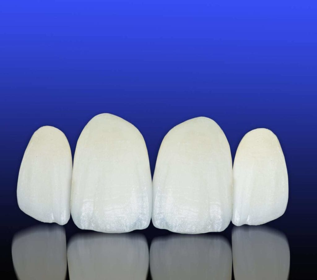 Best Implant Dentist Near Me: Are They Worth The Cost?